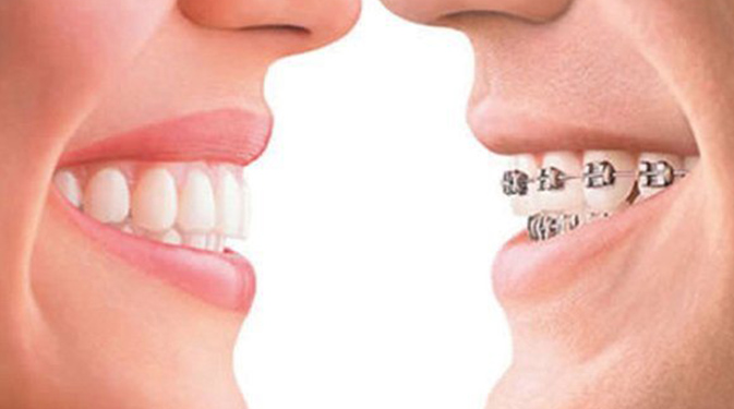 Braces vs. Invisalign