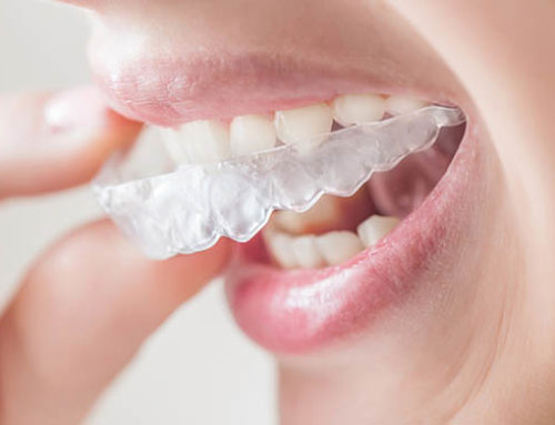 What is it Really Like to Have Invisalign?