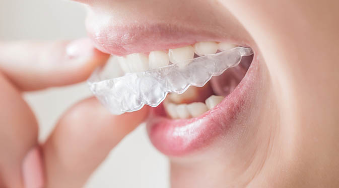 Invisalign clear aligners in a mouth